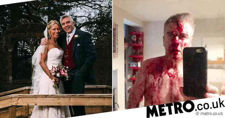 Married At First Sight star left covered in blood after fighting off five burglars wielding machetes