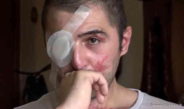 Sfregiato dall'ex fidanzata, Giuseppe Morgante chiede giustizia