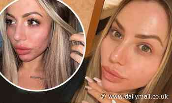 Holly Hagan posts make-up free selfie as she reveals the 'shame' she felt while suffering with acne