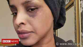 Racist attack investigation reopened by Met Police
