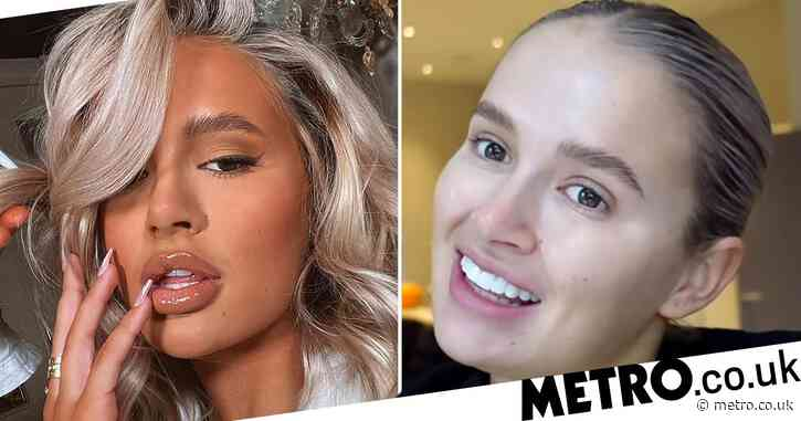 Love Island star Molly-Mae Hague reveals her lips have 'stretched' after having fillers dissolved