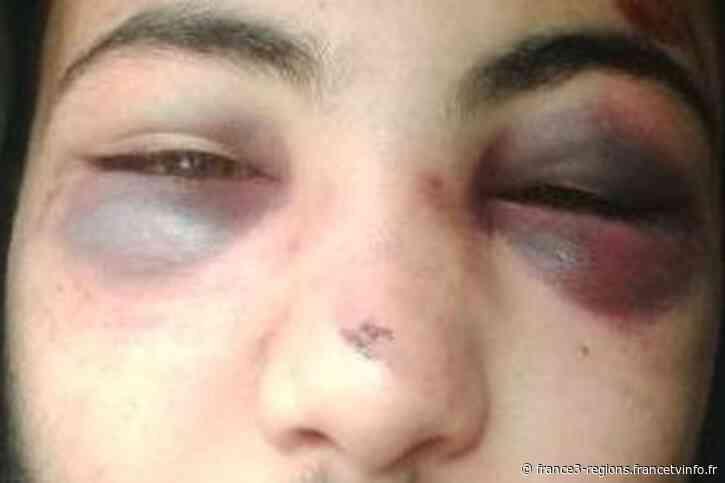 Strasbourg : un policier condamné à quinze mois de prison pour des violences commises sur un jeune homme - France 3 Régions
