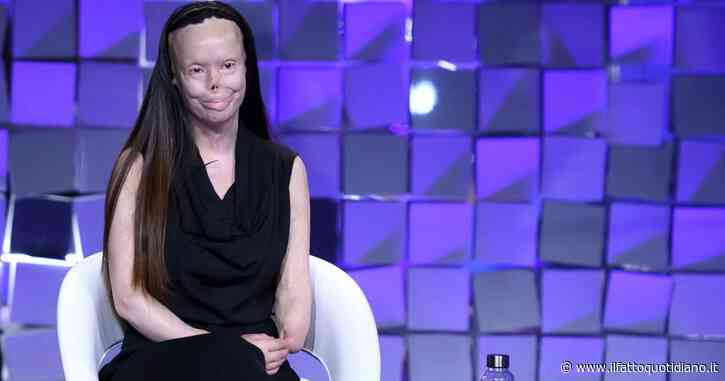 """Valentina Pitzalis, sfigurata a 27 anni dall'ex marito: """"Ho bruciato per 20 minuti, speravo di morire"""""""