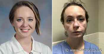 New nurse's powerful before and after pics show the toll of treating coronavirus