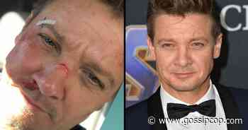 Jeremy Renner Shared A Photo With Cuts All Over His Face - We Investigate - Gossip Cop