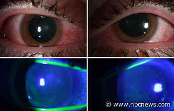 Doctors warn about eye damage from UV lights to kill the coronavirus