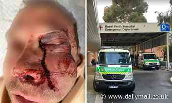 Horrific injuries suffered by motorist after he was thrown to the ground in violent road rage attack