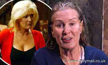 I'm A Celebrity's Beverley Callard reveals she has been offered a free facelift