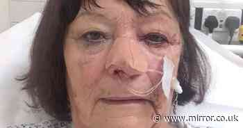 OAP with haemorrhage so severe blood came out of her eye waits 8 hours in A&E