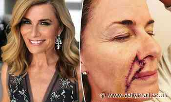 Deborah Hutton, 58, reflects on her life six months after skin cancer surgery on her face