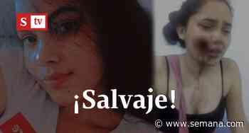Hombre le desfiguró el rostro a una joven en Planeta Rica - Semana
