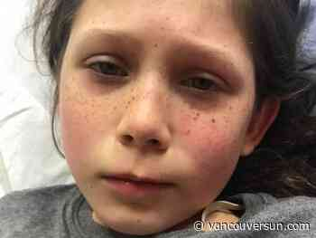 10-year-old B.C. girl hospitalized with rare COVID-19 syndrome