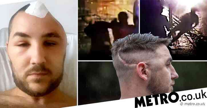 Man left with part of skull missing after attack will 'never lead a normal life'