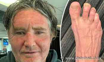Dave 'Hughsey' Hughes horrifies fans as he shows off his 'gross' feet