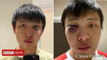 Coronavirus: Boy sentenced for racist street attack - BBC News