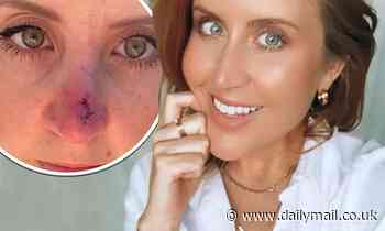 Married At First Sight Australia's Lauren Huntriss reveals she had skin cancer removed from nose
