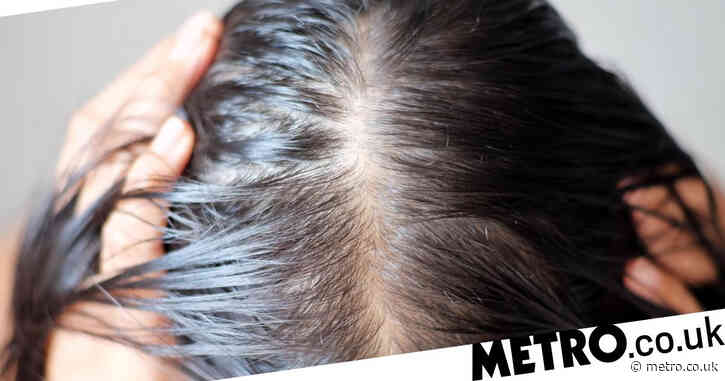 Quarter of Covid patients suffer hair loss with women most at risk