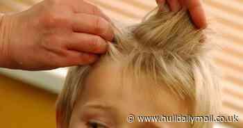 Head lice treatment may be the key to beating coronavirus, study suggests