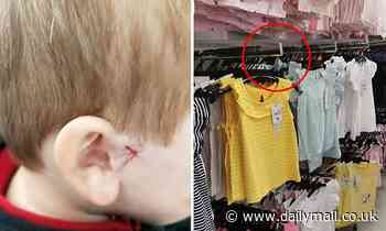 Four-year-old boy injury Kmart clothes hook as retail store says Covid delayed safety upgrade
