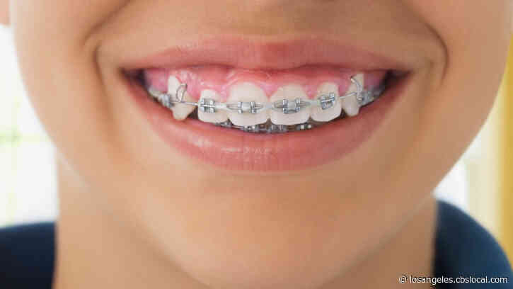 Orthodontist Kept Children In Braces Longer Than Necessary, Massachusetts AG Alleges In Lawsuit