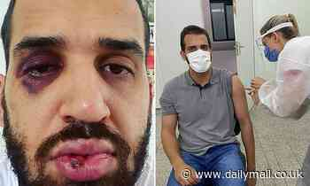 Brazilian doctor is beaten by relative after telling him not to go clubbing amid COVID pandemic