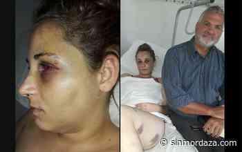 La joven agredida en San Carlos pide ser querellante en la causa y agravar la imputación - Sin Mordaza