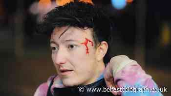 The cowards who attacked me from behind don't represent the good people of west Belfast