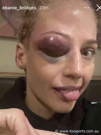 Aussie boxer reveals crazy injury: 'Eyes bigger than my boobs'