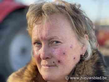 Christine (60) week na bomexplosie op controle in brandwonde... (Langemark-Poelkapelle) - Het Nieuwsblad