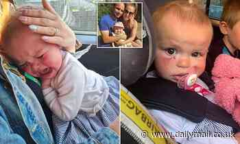 Dog bites 18-month-old girl in the face - missing eye by fraction of an inch in unprovoked attack