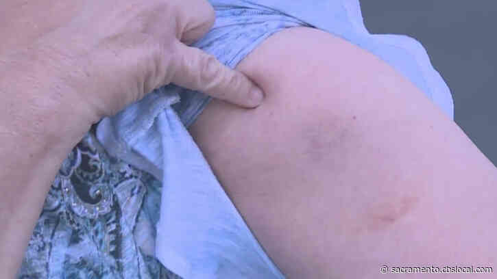 'I Was Mad': More Victims Report Drive-By Paintball Attacks In Sacramento
