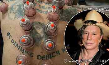 Mickey Rourke, 68, displays his tattoos as he lies on his front during cupping treatment - Daily Mail