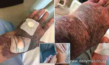 Australian grandmother in hospital covered with bruises after receiving AstraZeneca vaccine