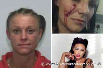 Woman jailed after stabbing model in face with screwdriver