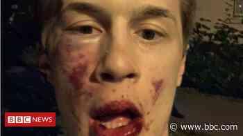 Yegor Zhukov: Leading Russian opposition blogger beaten up - BBC News