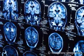 COVID-19 reduces gray matter in brain regions: study