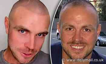 MAFS star Cameron Dunne has his recedinghairline tattooed back on