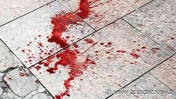 Lo aggrediscono in tre, spunta un'arma: ragazzo accoltellato finisce in ospedale - BresciaToday