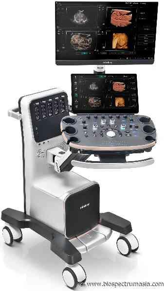 Chinese firm unveils novel OB/GYN diagnostic ultrasound system - BSA bureau