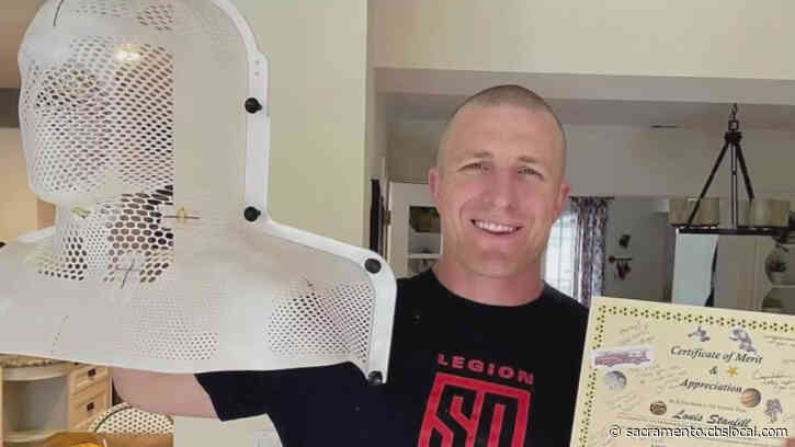 'Simply Just Another Bump In The Road': Future Sacramento Firefighter Tells Inspirational Story From Chemo To Cadet