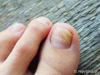 Remedios caseros para los hongos en las uñas de los pies - republica.gt