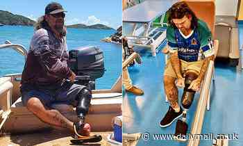 Man who split his foot in half from toe to ankle in Thailand recalls the moment