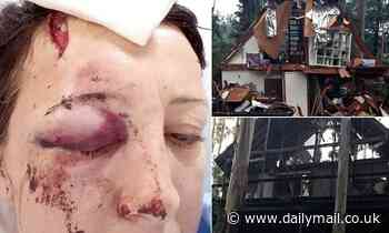 Mother shares image of bloody and bruised face after five falling trees destroyed home in Victoria