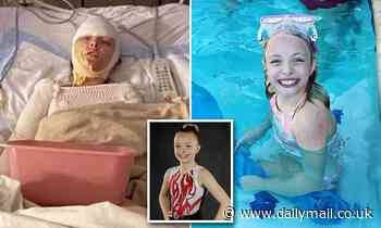 Girl, 10, suffers severe burns when propane tank explodes during party