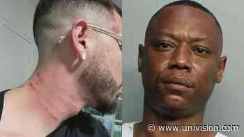 Joven de Miami denuncia ser víctima de un crimen de odio: acusa a su vecino de agredirlo por ser homosexual - Univision 23 Miami