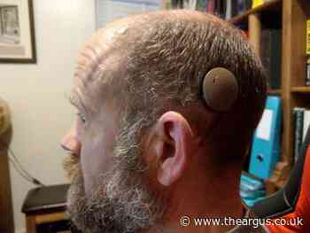 Worthing man who started to go deaf at 30 is first in Sussex to have new hearing implant