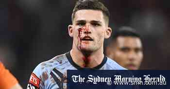 Week on from cutting face in Origin, Cleary to wear stitches in NRL return