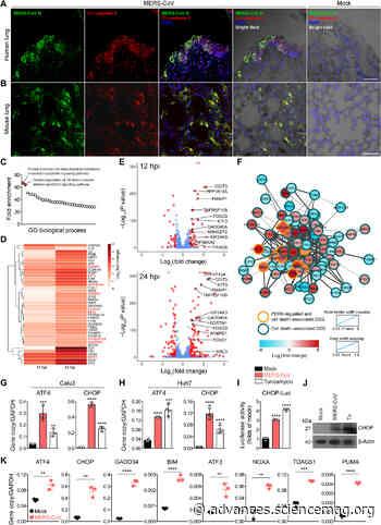 Targeting highly pathogenic coronavirus-induced apoptosis reduces viral pathogenesis and disease severity - Science Advances