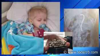 Niño de Florida termina en la sala de emergencias después de tragarse los juguetes de su hermano - WPLG Local 10