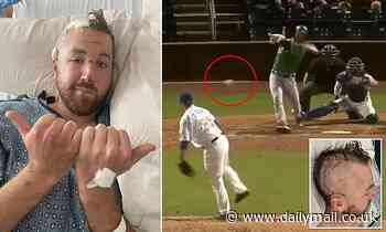 Minor leaguer Tyler Zombro reveals GRAPHIC post-brain surgery pics after being hit with line drive